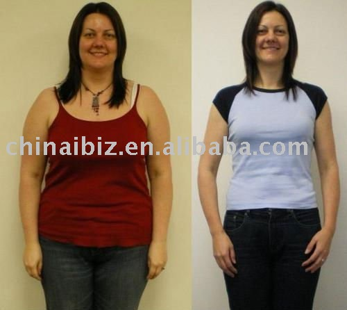 Hcg Diet Before And After Pictures Weight Loss